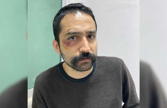 Gözaltına alınan Aytaç Ünsal'a işkence!