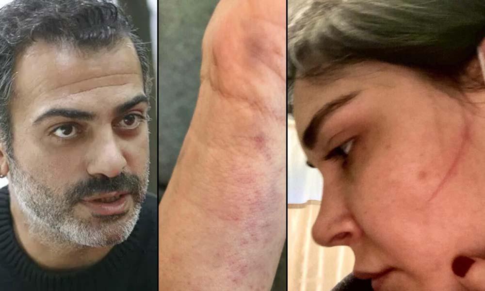 Sermiyan Midyat'ın Erdoğan sevgisinin nedeni belli oldu! Görüntüler ortaya çıktı