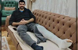 Ankara'da Boğaziçi Üniversitesi'ne destek olmak için eyleme katılan Deniz Baran Erbudak'ın bacağı kırıldı!