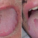 Koronavirüsün yeni belirtisi: 'Covid dili'
