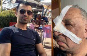Kıyak atamayla gündeme gelen imam şehit babasının burnunu kırdı