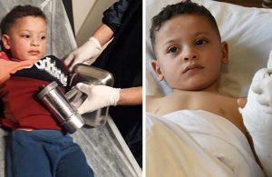 3 yaşındaki Ahmet, elini kıyma makinesine kaptırdı