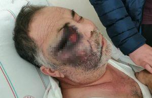 Engelli kişiye darp iddiası: 2 kişi göz altına alındı