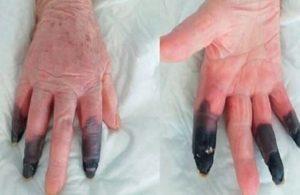 Koronavirüse yakalanan kadının parmakları kesildi