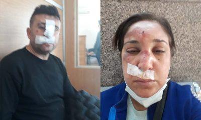 Polis şiddeti hız kesmiyor! Çapkan ve Sahan'ı bu hale getirdiler