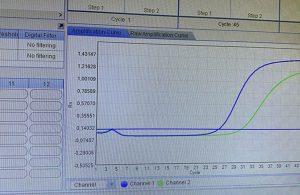 PCR testinde sonucu bu çizgiler belirliyor: Mavi çizgi artışta ve pik yaptıysa…