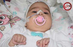SMA hastası Elif Eva yardım bekliyor
