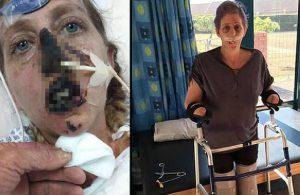 Bir ısırık hayatını mahvetti! 66 ameliyat geçirdi…