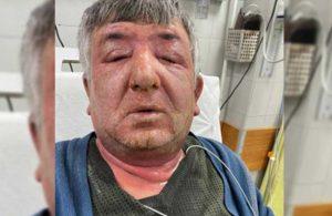 Yüzüne dezenfektan sürdü, hastanelik oldu