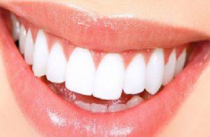 Porselen ve zirkonyum diş kaplama fiyatları 2021