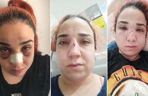 İş yerinde patron şiddeti iddiası! Yüzü, gözü kan içinde kaldı
