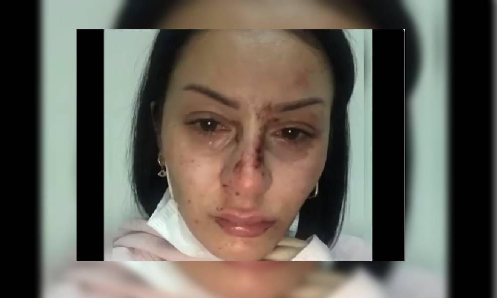 Esenyurt'ta bir kadın 5 polis tarafından darp edildi