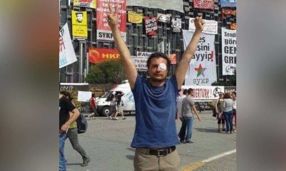 Gezi eylemlerinde gözünü kaybeden Volkan Kesanbilici: Feda olsun