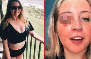 Güzellik merkezine giden kadının göz kapağını köpek koparttı