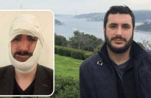 Anadolu Ajansı muhabiri darp edildi, çenesi kırıldı