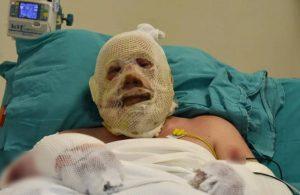 Denizli'de yangın söndürme çalışmalarında yaralanan Kozakbaş, yaşadıklarını anlattı
