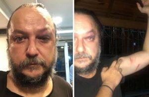 Sanatçı Güvenç Dağüstün'e konser sonrası saldırı
