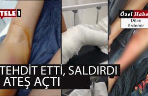 DHA çarpıttı, saldırıda yaralanan kadın TELE 1'e anlattı