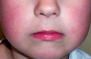 Çocuğunuz kırmızı yanaklı ise dikkat! Bulaşıcı olabilir